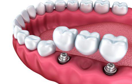 השיניים נשברו? מה האופציות שלכם